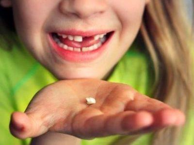 Как и почему меняются молочные зубы у ребенка?