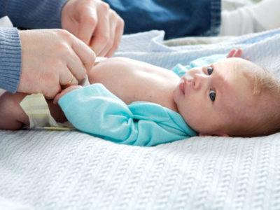 Мокнущий пупок у новорожденного